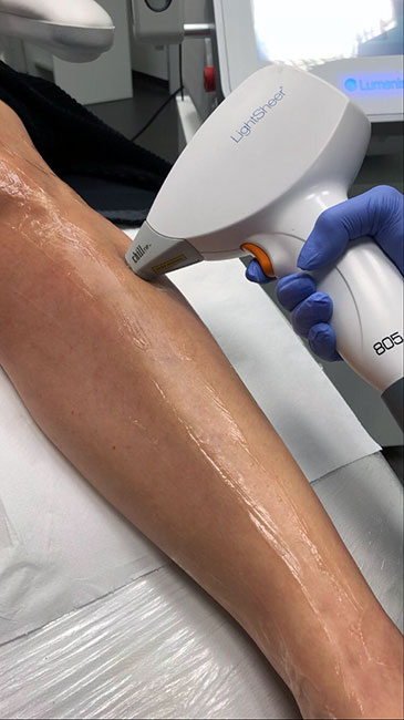 Lumenis LightSheer laserová epilácia lýtka
